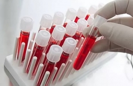 Це цікаво! 9 головних показників крові вашого здоров'я
